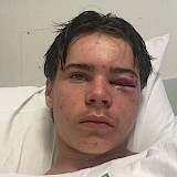 Assault Victim Recovering